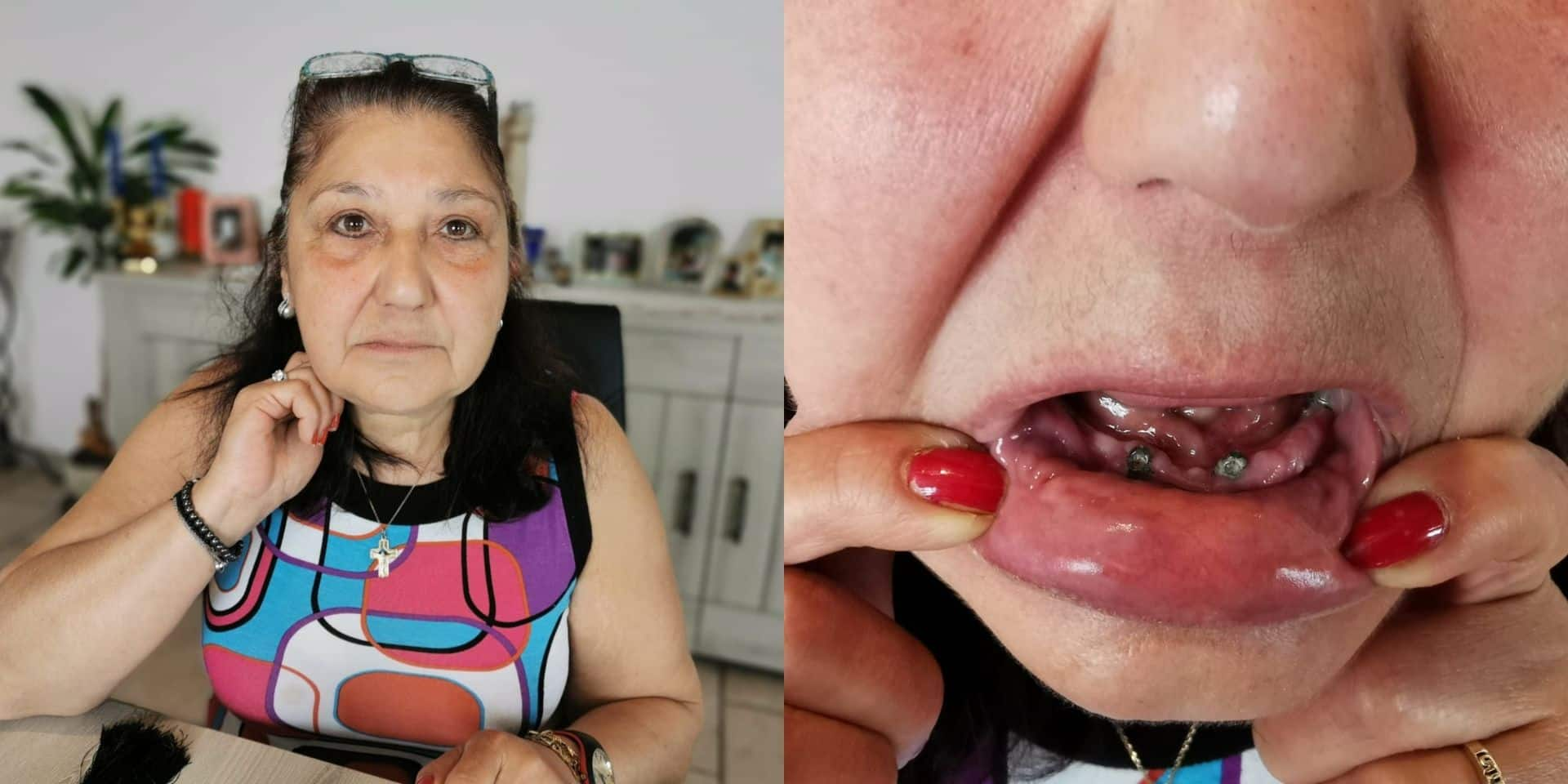 """""""Je vais à l'hôpital pour une gastroscopie, j'en ressors sans mes dents"""" : le combat de Christina"""