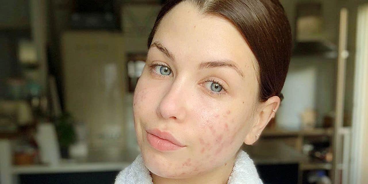 L'acné fait son retour en force après l'été : 8 ados sur 10 en souffrent