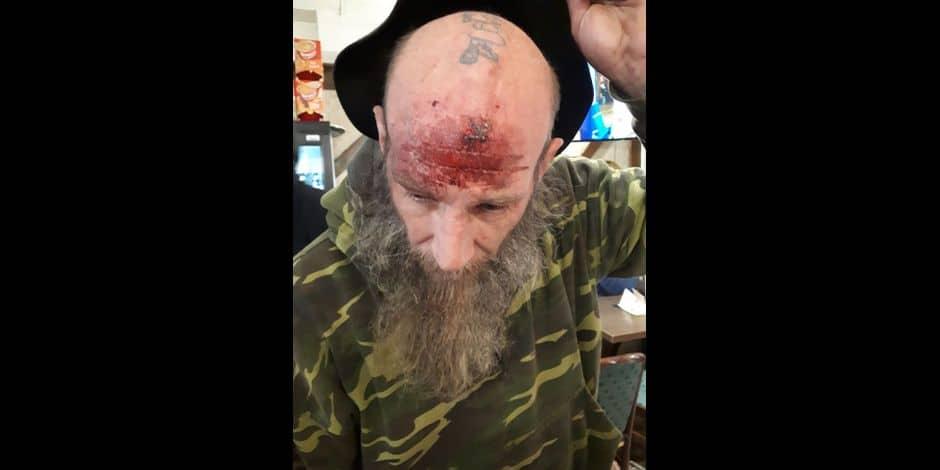 Ludwig Simon blessé lors de la manifestation de Charleroi